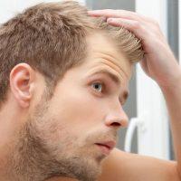 髪の毛パサパサ ハゲる