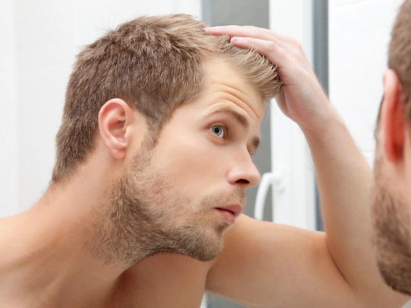 髪の毛パサパサ,ハゲる