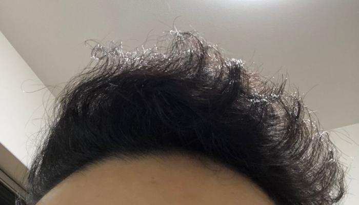 チリチリ髪を治せる根拠